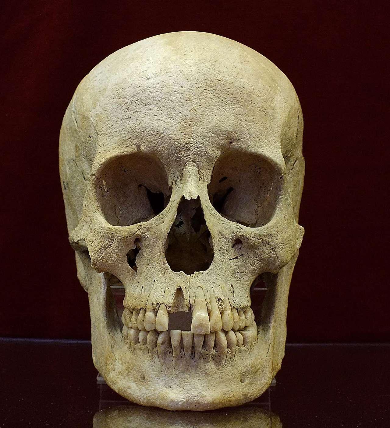 Langobard nő koponyája