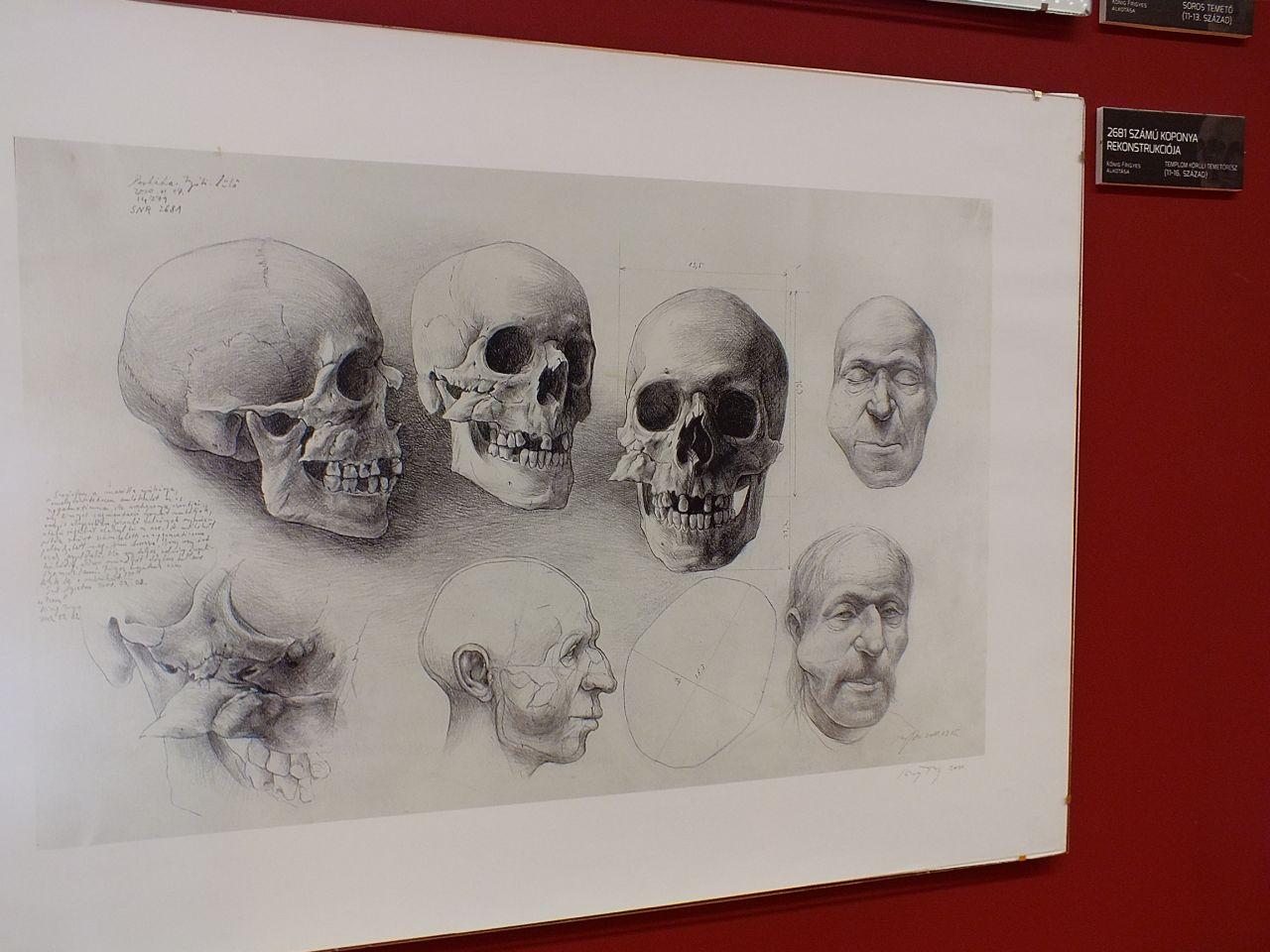 Rákos elváltozásban szenvedő középkori férfi arcrekonstrukciója <br />(Perkáta Nyúli-dűlő, rajzolta: Kőnig Frigyes)