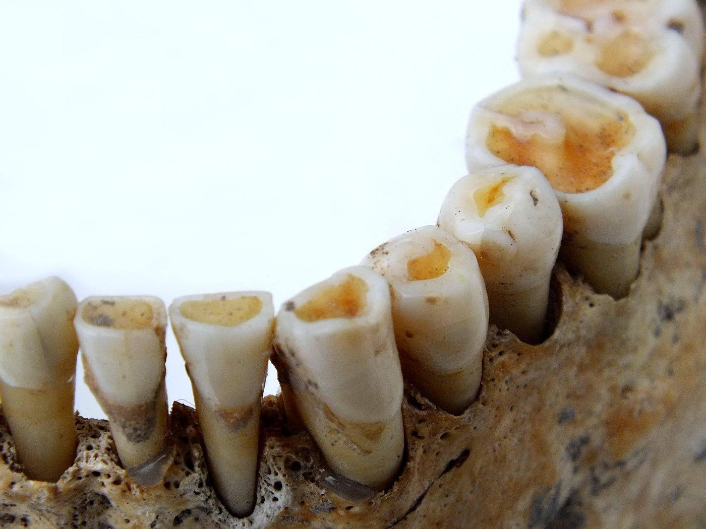 A középkori táplálkozás tükre, a fogak