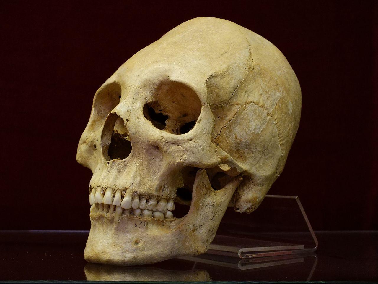 Torzított koponyájú germán nő <br/>(Mözs, Tolna megye)